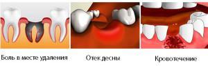 Что делать чтобы быстрее зажила лунка после удаления зуба