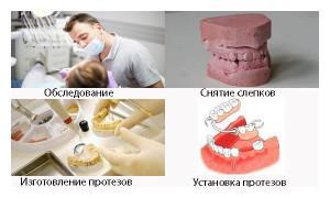 Что такое съемный зубной протез-бабочка на один зуб Плюсы и минусы иммедиата