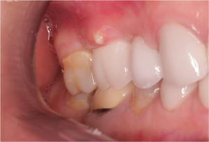 Киста зуба – чем опасна, симптомы, как выглядит