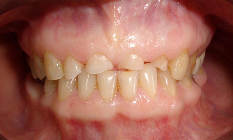 Patologicheskaya-stiraemost-zubov