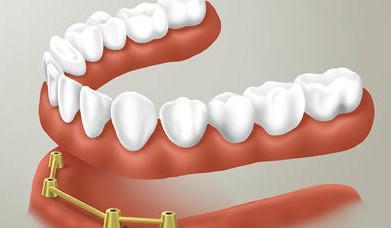 Зубные протезы на присосках (съемные)