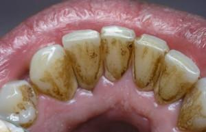 Как бороться с образованием зубного камня