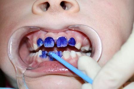 Серебрение зубов у детей. Серебрение молочных зубов — эффективность методики для детей