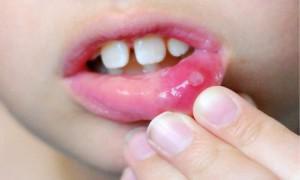 Стоматит у детей заразен или нет