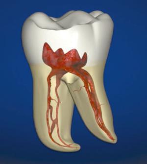 Чем убивают нерв в зубе кроме мышьяка