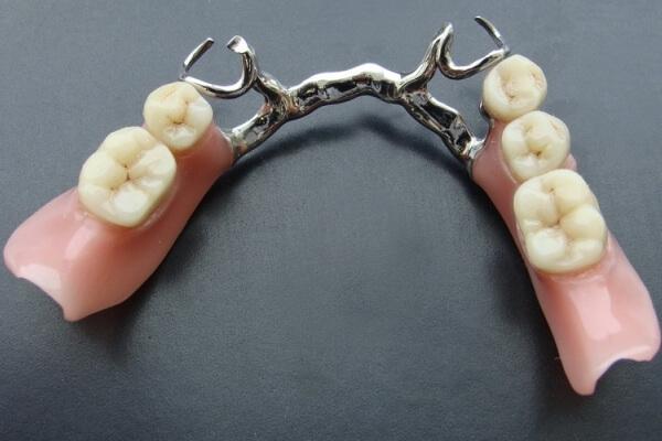 Какие зубные протезы лучше поставить: виды, сравнение 40
