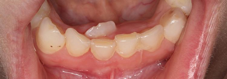 У ребенка не растут коренные зубы