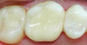 Сколько нельзя есть после пломбирования зуба: световая или временная пломба