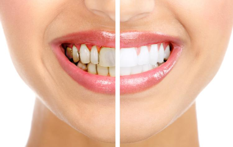 Как без вреда убрать зубной камень в домашних условиях