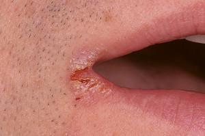 Чем лечить заеды возле губ