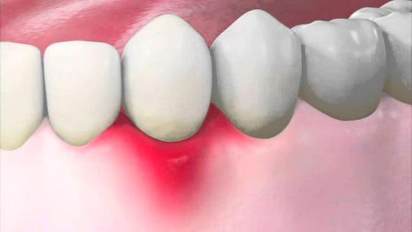 Опухла и болит десна возле зуба