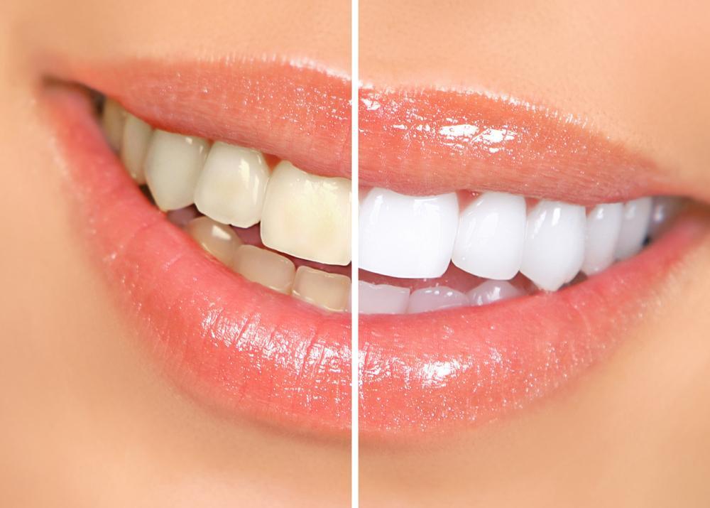 Отбеливание зубов – виды, способы, отзывы, фото