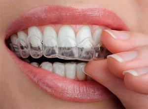 КАК СДЕЛАТЬ КАПУ В ДОМАШНИХ УСЛОВИЯХ: Капы для отбеливания зубов (отзывы)