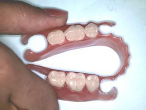 Какие протезы для зубов самые лучшие