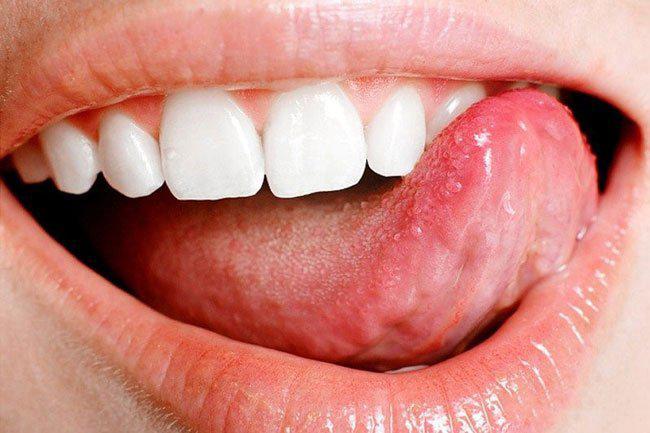 Болит язык возле горла