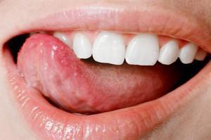 На корне языка ближе к горлу