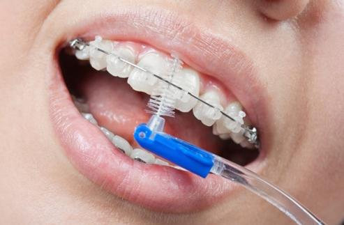 Зубные щетки и ершики для брекетов подробная классификация и правила выбора инструмента