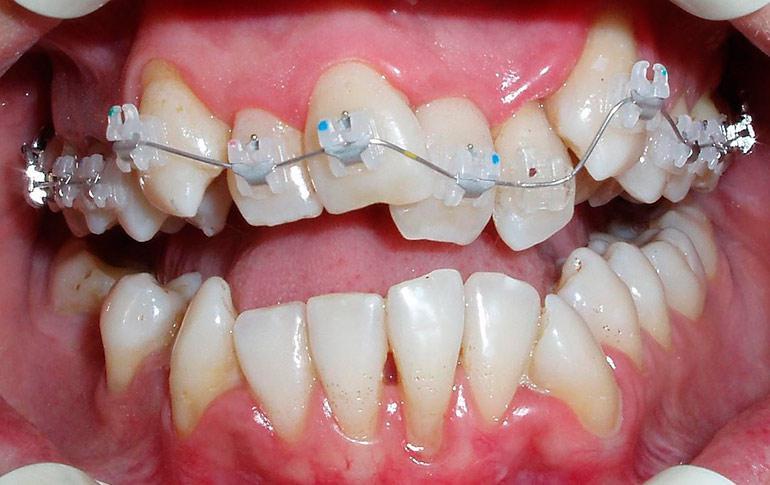 Как сделать брекет для зубов 115