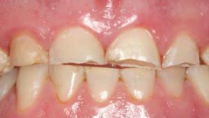Ночной скрип зубами у взрослых