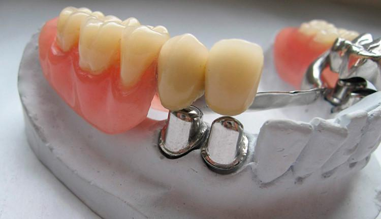 Протезирование зубов виды и цены в Москве