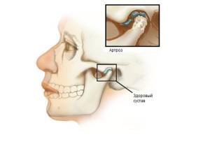 Изображение - Разрушается челюстной сустав cb147e4433bc659e8b0b14bfddbef431-300x206