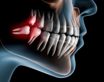 Зуб мудрости растет в щеку что делать (фото и видео)