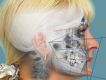 cefalometrics