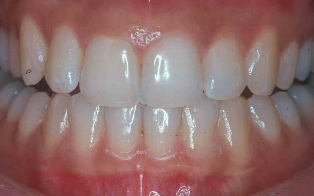 Передние нижние зубы зудят
