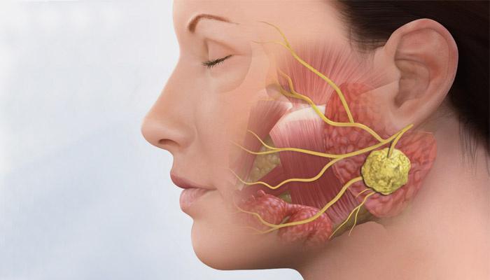 Воспаление подъязычной слюнной железы симптомы лечение