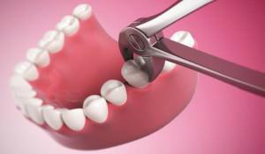 4 день болит десна после удаления зуба