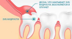 Может ли зуб мудрости расти несколько лет