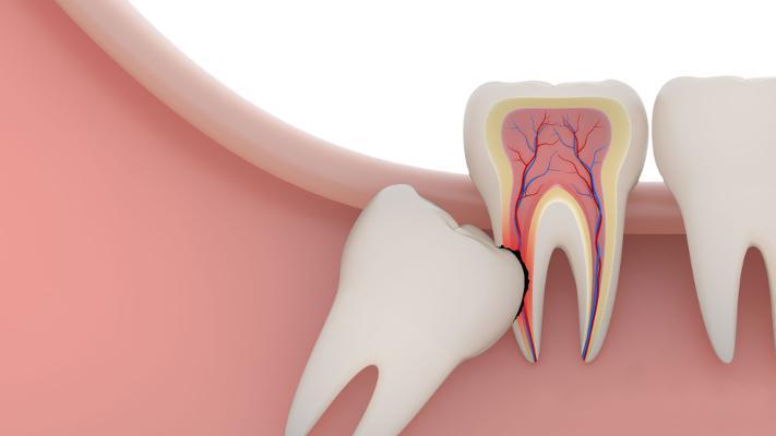 Какие бывают осложнения после удаления зуба мудрости