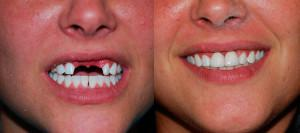 Протез временный на передний зуб бабочка