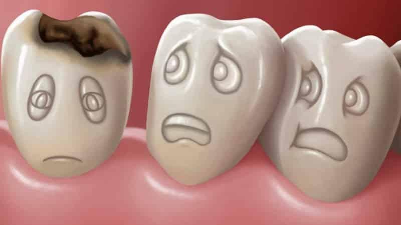 Кариес молочных зубов у детей - лечение, причины, профилактика
