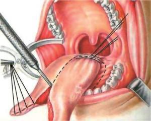Рак языка признаки и симптомы