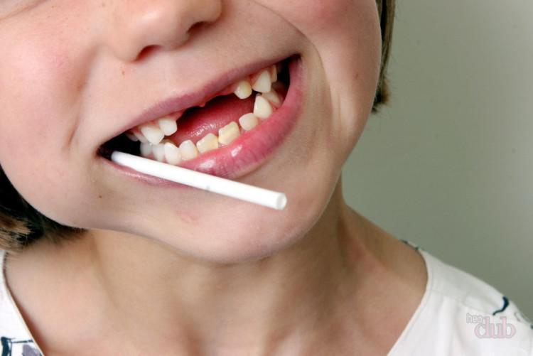 Сонник к чему снятся выбитые зубы