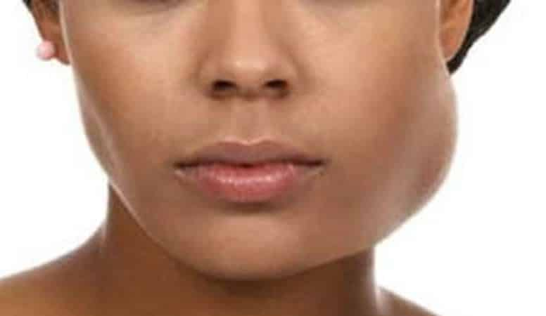 Как снять опухоль если опухла щека от заболевания зуба