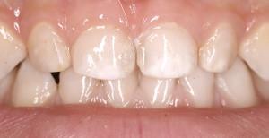 Восстанавливаем минеральный состав эмали зубов у детей фторирование его преимущества и недостатки