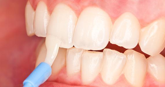 Повреждение эмали зуба симптомы