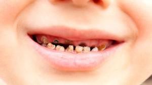 Сонник к чему снится гнилые зубы
