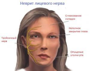 Воспаление лицевого нерва (неврит) лечение в домашних условиях