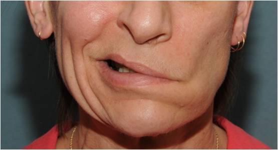 Последствия удаления зуба мудрости. Неврит тройничного нерва после удаления зуба