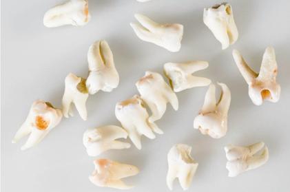 Особенности строения пульпы, полости зуба, корневых каналов временных зубов и постоянных зубов с несформированными корнями.