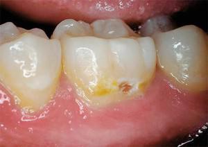 Как начинается кариес на задних зубах