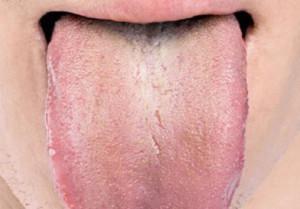 Симптомы и лечение дисбактериоза полости рта как избавиться от бактерий на слизистой и устранить неприятный запах