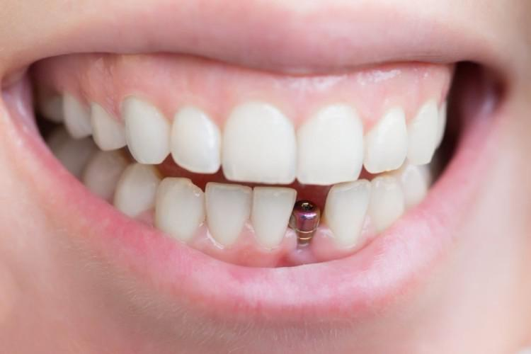 После имплантации зубов — рекомендации по уходу за имплантами зубов