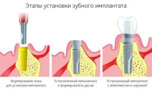 Что такое имплантация зубов и установка имплантата