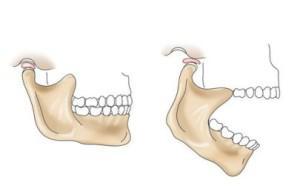 Изображение - После стоматолога болит челюстной сустав iucatal3000035-405x251-300x186