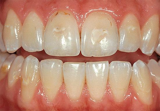 Придесневой кариес передних зубов