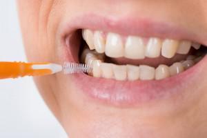 Ершики для зубов особенности применения и правила пользования